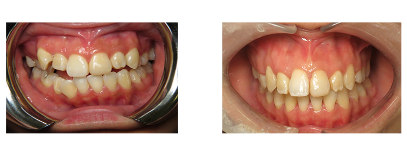 Ortho before & after