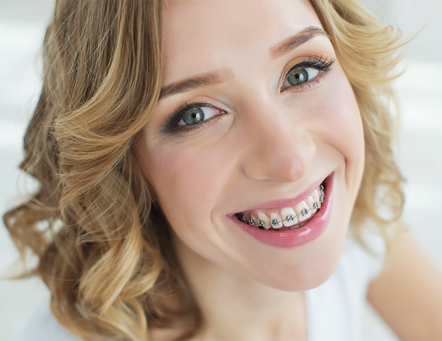 Women with Traditional Braces.
